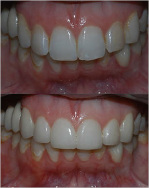 Marlton NJ Patient 1 before and after
