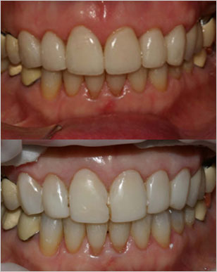 Marlton NJ Patient 2 before and after