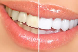 Teeth Whitening Marlton NJ Dental Office