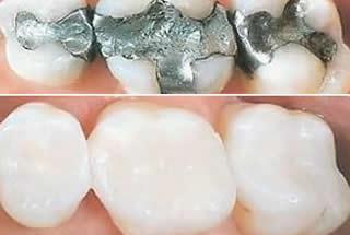 Mercury Free Dentistry Marlton NJ