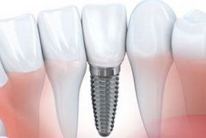 Dental Implants Marlton New Jersey