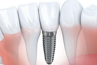 Implant Dentistry Marlton NJ