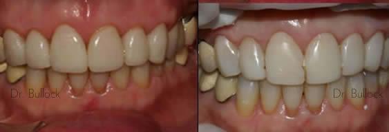 Marlton NJ Dentists Smile Gallery 2