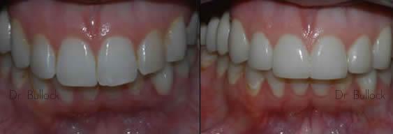 Marlton NJ Dentists Smile Gallery 1